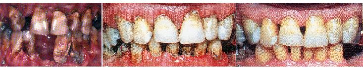 Parodontite grave                        Parodontite                Parodontite dopo terapia