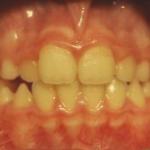 alterazioni sagittali con maggiore sviluppo della mandibola (malocclusioni di classe III) - Post Terapia