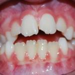 alterazioni sul piano verticale caratterizzate da aumento della dimensione verticale (open bite) - Pre Terapia