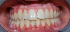 alterazioni sul piano verticale caratterizzate da aumento della dimensione verticale (open bite) - Post Terapia