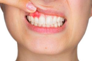 Gengive-Diabete-e-parodontite-la-correlazione-da-tenere-sotto-controllo-300x200