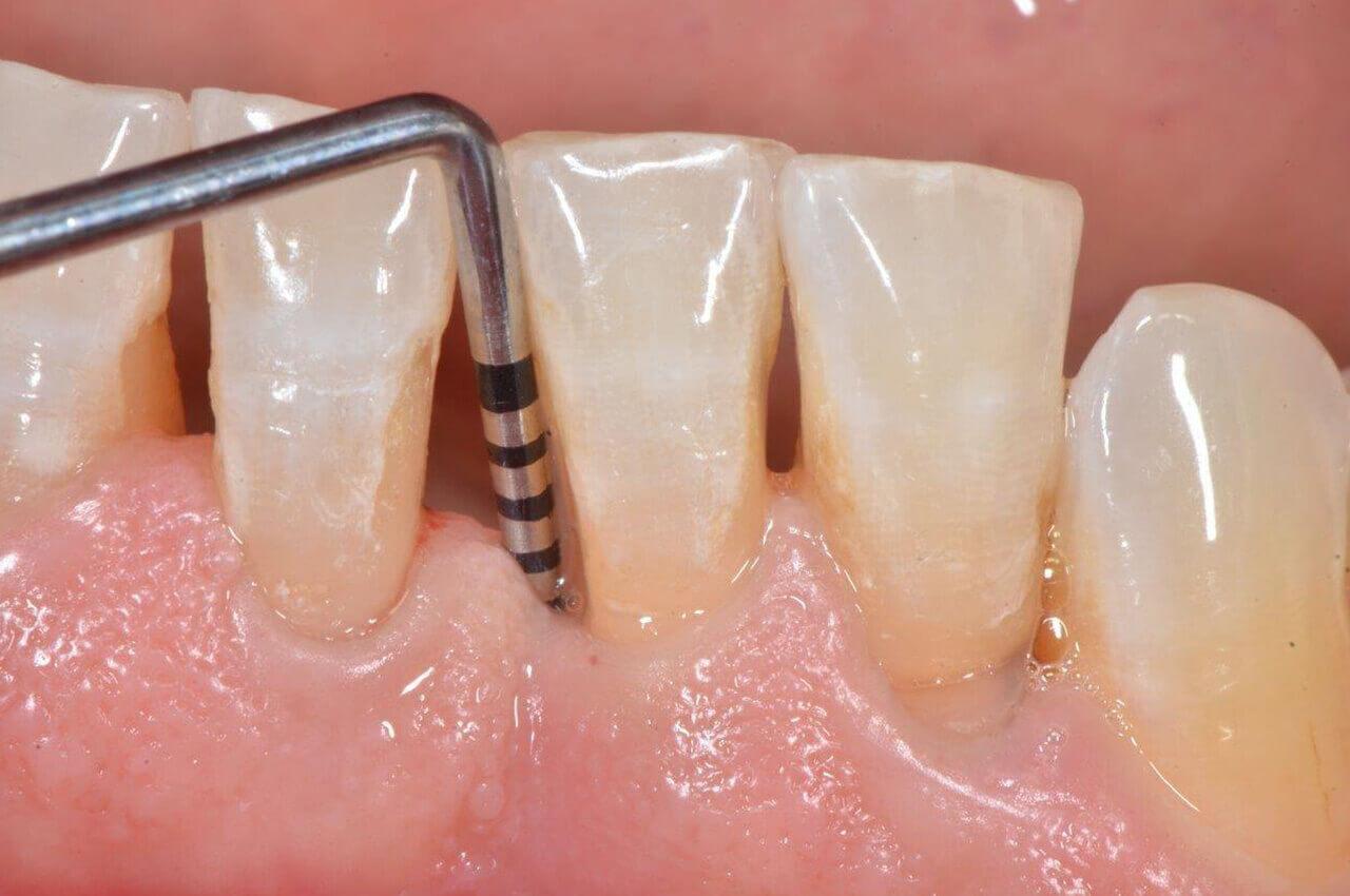 2-sondaggio-patologico-parodontogia-napoli